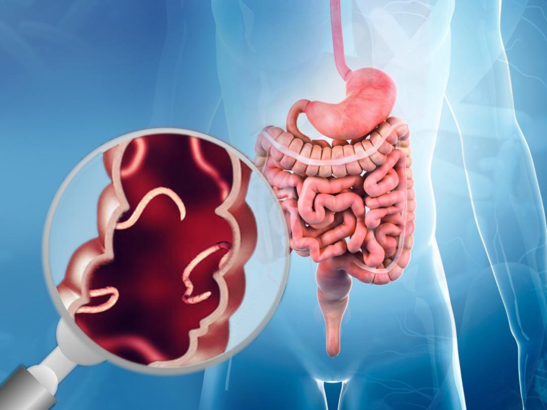 parazitoze intestinale)